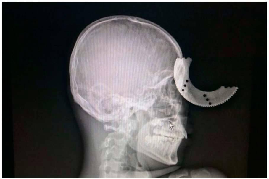 череп с диском в голове